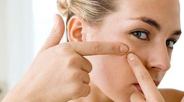 eliminar-acne-trucos